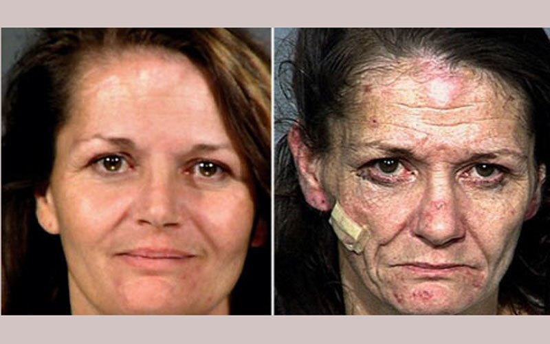 How to Start Crystal Meth Recovery