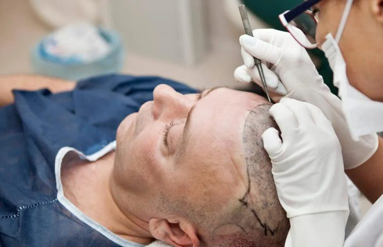 Does Hair Transplant Cost Depend On The Technique Used For Surgery?