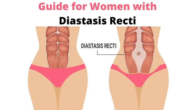 The Ultimate Guide for Women with Diastasis Recti
