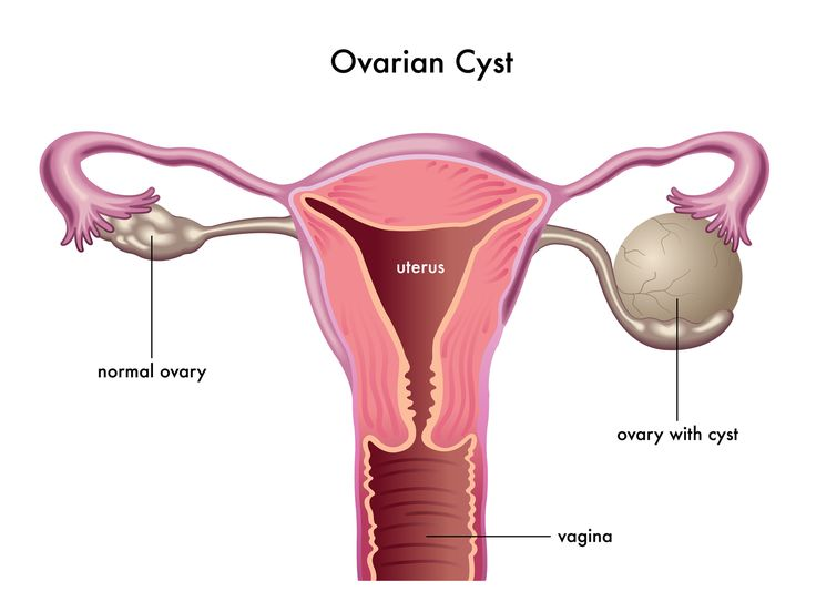 What are ovarian cysts?
